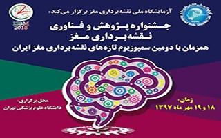 توانمندی دانشبنیانهای حوزه نقشه برداری مغز عرضه میشود