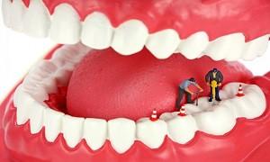 فناوری چاپ سهبعدی به کمک دندانهای پوسیده آمد