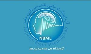 آزمایشگاه ملی نقشه برداری مغز در مسیر بهره گیری از دانش پیشرفته بین المللی