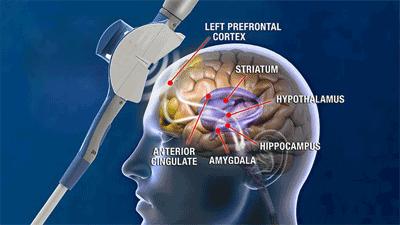 آزمایشگاه تحریک مغناطیسی فراجمجمهای مغز (TMS)
